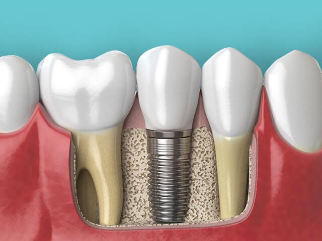 Εμφυτεύματα - Οστεοενσωμάτωση | Dental Implants - Osseointegration