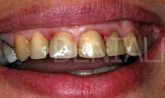 Case Studies Στεφάνες Πορσελάνης | Porcelain Crowns