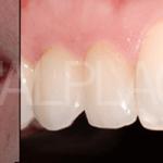 Case Studies Εμφυτεύματα   Dental Implants