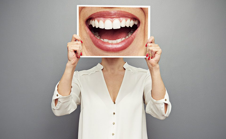 Πόσο ασφαλής είναι η λεύκανση των δοντιών;